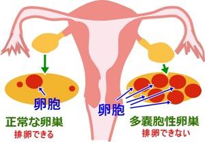 多嚢胞性卵巣